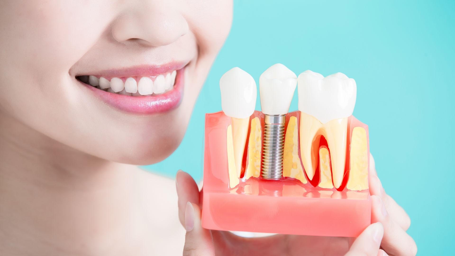 Dentalimplant Slide 1