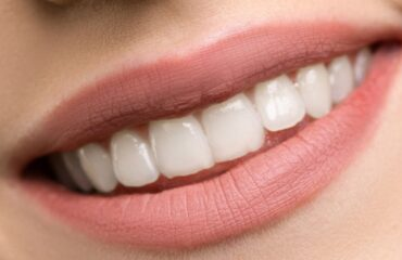 Dental implant recovery