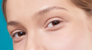 what to expect after upper eyelid surgery