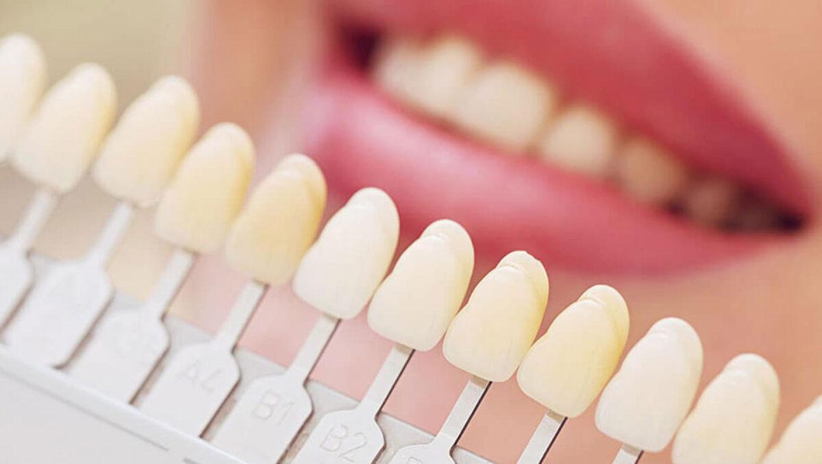 dental match