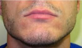beard 1 1