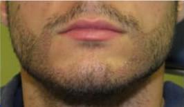 beard 1 2