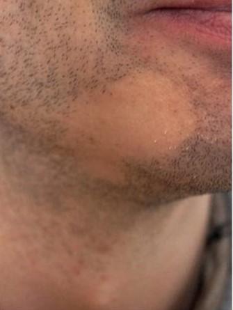 beard 2 1