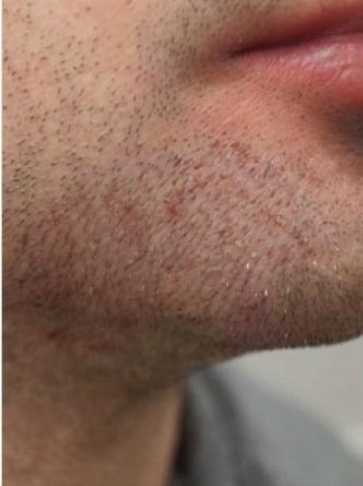 beard 2 2