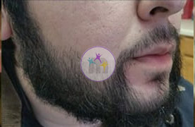 beard 3 2