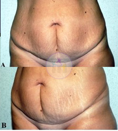 Abdominoplasty1 1