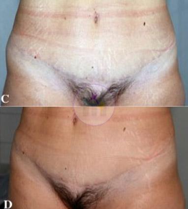 Abdominoplasty1 2