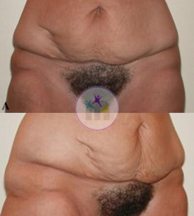 Abdominoplasty3 1