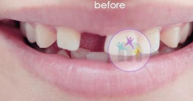 dental implant 6 1jpg