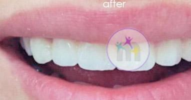 dental implant 6 2