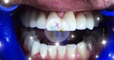 dental implant 7 2