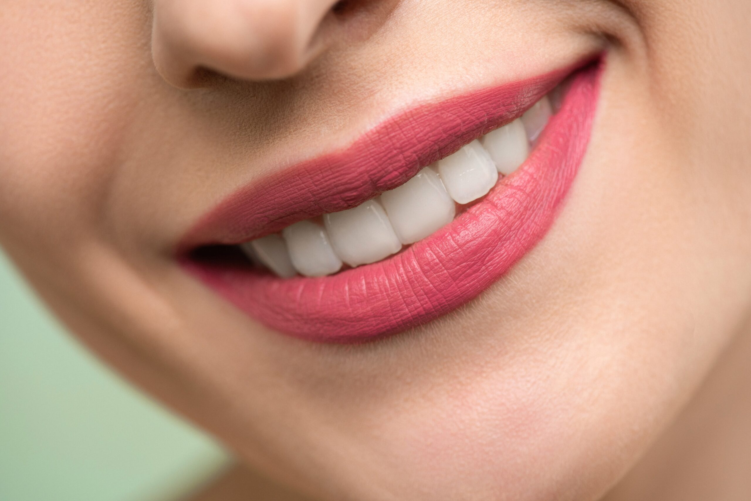 veneers before and after 4